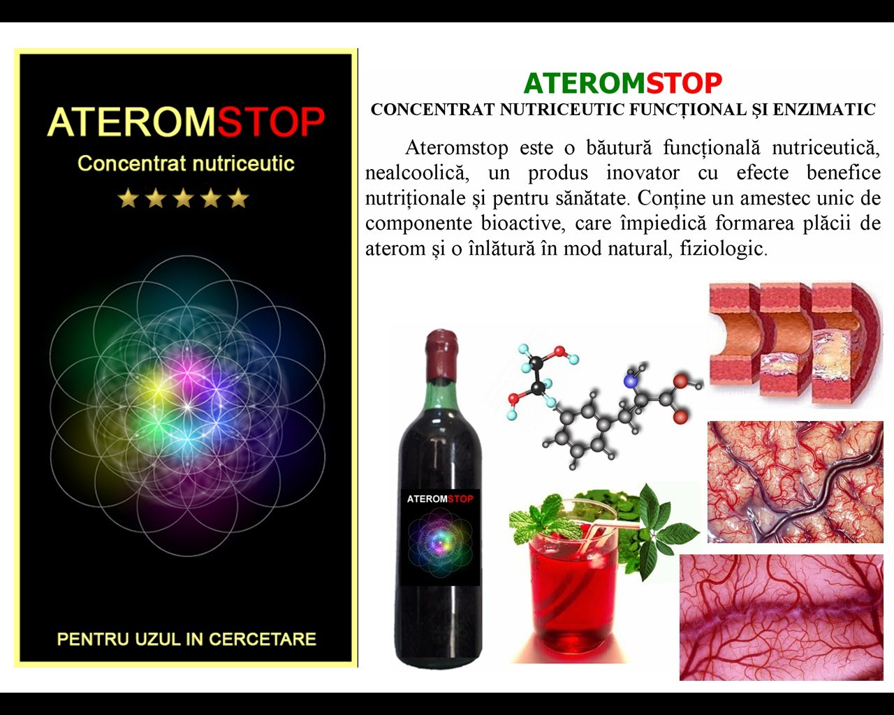 https://sites.google.com/site/consultantabiologica/about-us/ATEROMSTOP.jpg